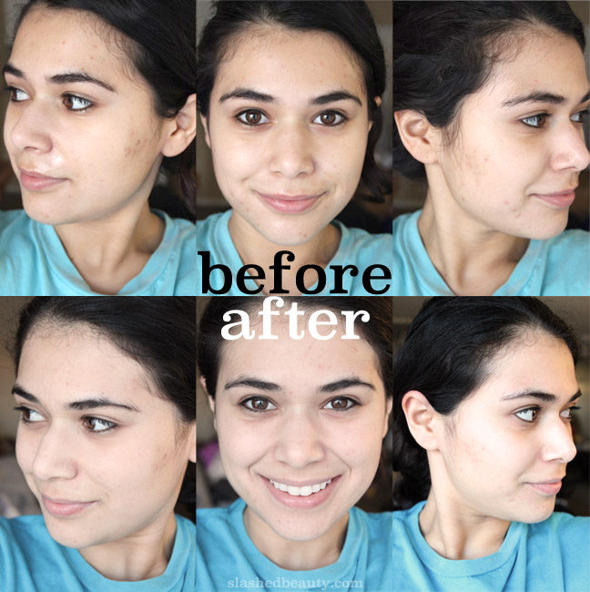 Before & After using the Conture Kinetic Skin Toning System. It seriously improved the texture and evenness in my skin, and let my products work like they're supposed to. Click through to see how it works!