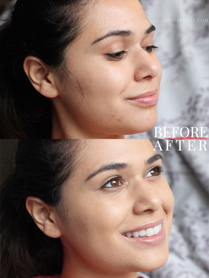 The new e.l.f. Aqua Beauty Mousse Foundation gives you radiant coverage with a lightweight feel. Here's a before & after-- read the full review to see how it's different than its description!   Slashed Beauty
