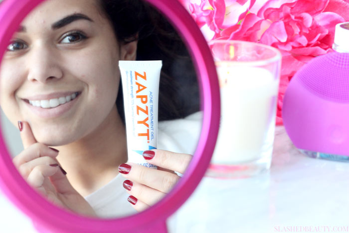 Find out why we get period acne that's stubborn and hard to manage, and what you can do to treat it-- I'm using ZAPZYT!   Slashed Beauty